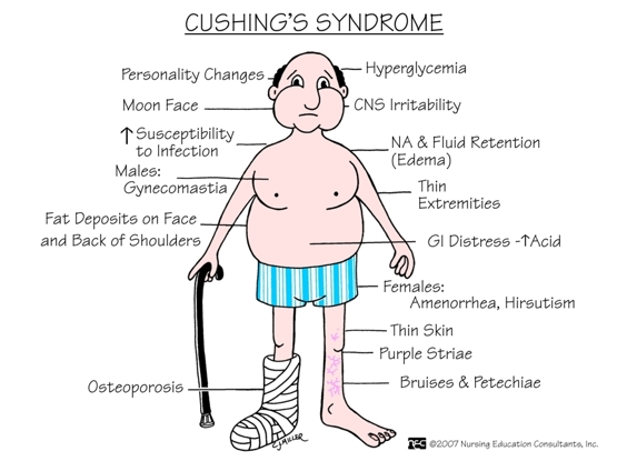 cushings syndrome Learn about laboratory testing related to cushing syndrome, a group of signs and symptoms caused by abnormally high levels of cortisol cortisol is a hormone that breaks down fat and protein and helps the body react to.