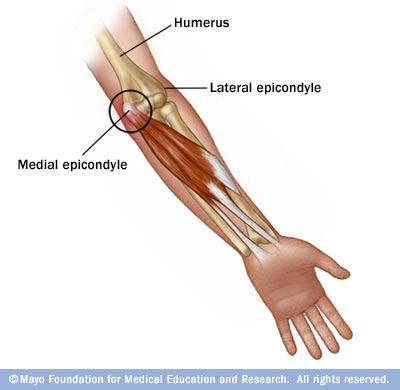 Elbow And Forearm Disorders