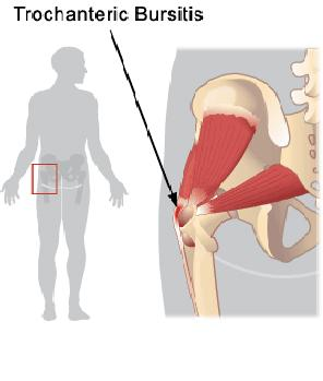 an understanding of bursitis Understand someone with chronic pain chronic fatiguechronic  hip pain  acute hip pain - trochanteric bursitis -the current annoyance find this pin and.